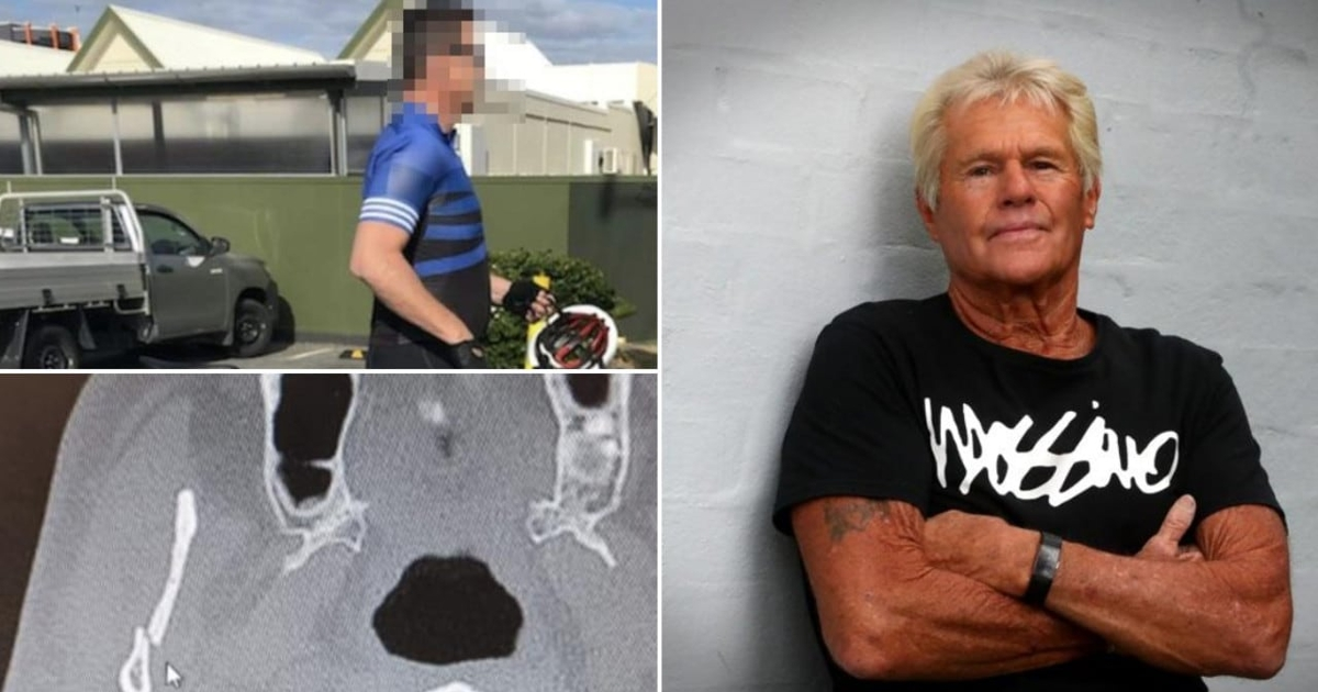 Pensioner Left With Broken Jaw
